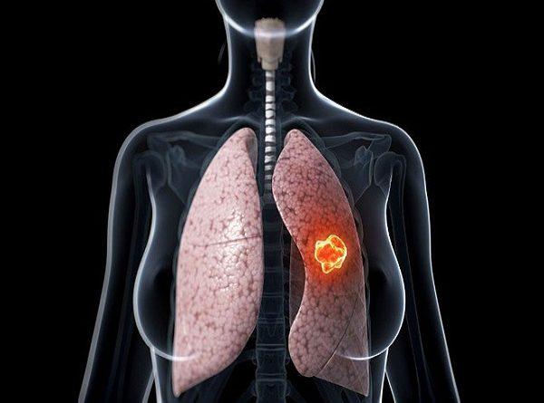 Bệnh ung thư phổi có thể sống được bao lâu