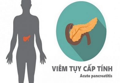 Dấu hiệu bệnh viêm tụy và những thực phẩm không nên ăn