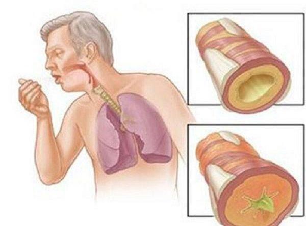 Bệnh lao phổi là gì? Nguyên nhân và cách điều trị