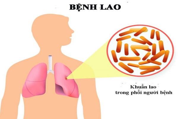 Bệnh lao phổi là bệnh truyền nhiễm thường do vi khuẩn Mycobacterium tuberculosis (MTB) gây ra