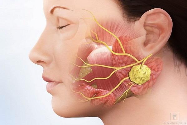 Bệnh viêm tuyến nước bọt