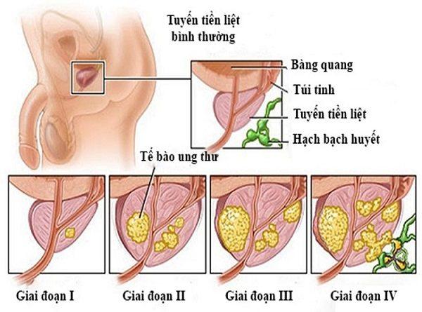 Triệu chứng dẫn đến bệnh viêm tuyến tiền liệt