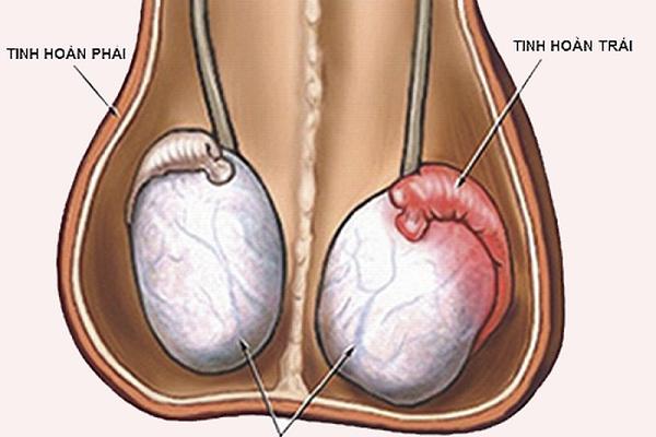 Viêm tuyến tiền liệt là một loại viêm nhiễm tại bộ phận tuyến tiền liệt