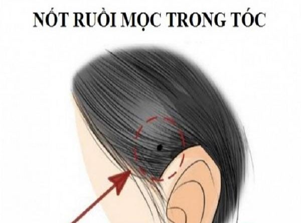 not-ruoi-trong-toc